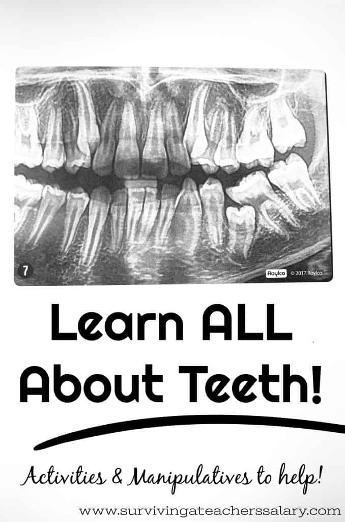 Learn All About Teeth - Dental X-Rays for Kids Learning Activity